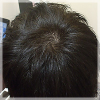 AGA治療 症例写真1 After