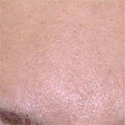 オールフェイス脱毛 症例写真1 Before