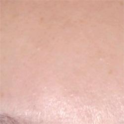 オールフェイス脱毛 症例写真1 After