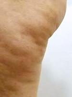 アポロ(痩身) 症例写真3 Before