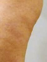 アポロ(痩身) 症例写真3 After