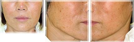 スレッドリフト・アプトス 症例写真1 1ヶ月後