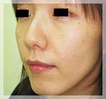 スレッドリフト・アプトス 症例2 Before 左