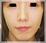 スレッドリフト・アプトス 症例2 Before 正面
