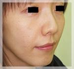 スレッドリフト・アプトス 症例2 Before 右