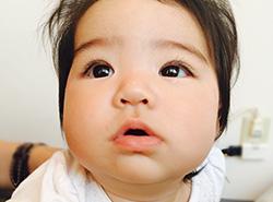赤ちゃんの時に大量に生成されるベビーコラーゲン