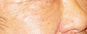 ベビーコラーゲン注射(Ⅲ型コラーゲン) 症例写真2 Before