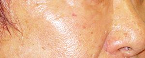 ベビーコラーゲン注射(Ⅲ型コラーゲン) 症例写真2 After