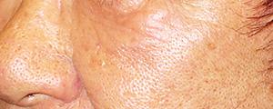 ベビーコラーゲン注射(Ⅲ型コラーゲン) 症例写真3 Before