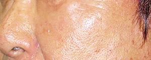 ベビーコラーゲン注射(Ⅲ型コラーゲン) 症例写真3 After