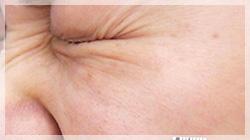 ボトックス注射 症例写真4 Before