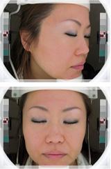 ボトックスリフト(小顔治療) 症例写真3 Before