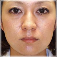 ボトックスリフト(小顔治療) 症例写真5 Before