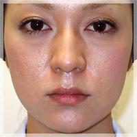 ボトックスリフト(小顔治療) 症例写真5 After
