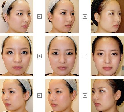 ボトックスリフト(小顔治療) 症例写真6