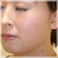 ボトックスリフト(小顔治療) 症例写真1 Before
