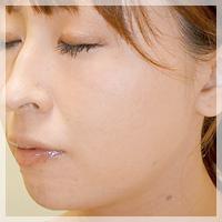 ボトックスリフト(小顔治療) 症例写真1 After