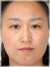 ボトックスリフト(小顔治療) 症例写真7 Before