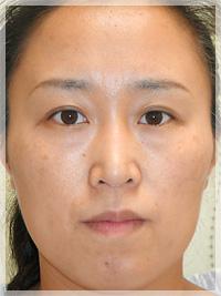 ボトックスリフト(小顔治療) 症例写真7 After