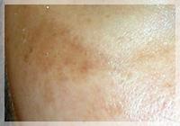 肝斑 症例写真1 Before
