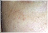 肝斑 症例写真1 After