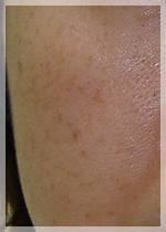 老人性色素斑 症例写真2 Before