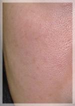 老人性色素斑 症例写真2 After