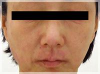血液クレンジング・オゾン療法 症例写真2 Before