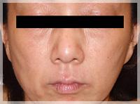 血液クレンジング・オゾン療法 症例写真1 After