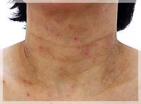 血液クレンジング・オゾン療法 症例写真3 Before