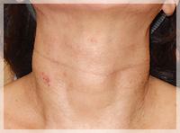 血液クレンジング・オゾン療法 症例写真3 After