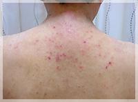 血液クレンジング・オゾン療法 症例写真4 Before