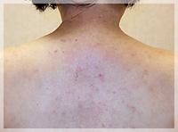 血液クレンジング・オゾン療法 症例写真4 After