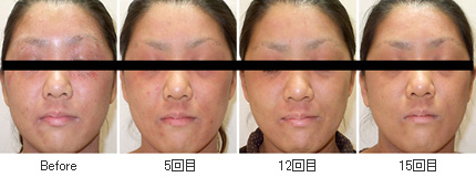 血液クレンジング・オゾン療法 症例写真5-1