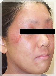血液クレンジング・オゾン療法 症例写真5-2 Before