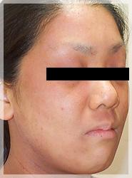 血液クレンジング・オゾン療法 症例写真5-2 After
