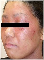 血液クレンジング・オゾン療法 症例写真5-3 Before