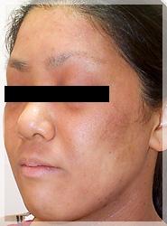 血液クレンジング・オゾン療法 症例写真5-3 After