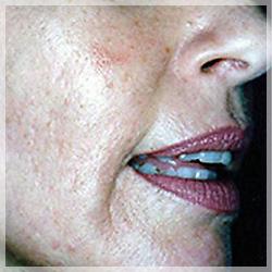 ダーマローラー 症例写真4 After