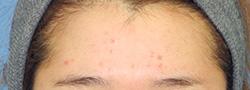 水光注射(ダーマシャイン) 症例写真01 1回治療後