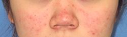 水光注射(ダーマシャイン) 症例写真02 1回治療後