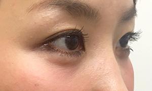 涙袋形成(ヒアルロン酸) 症例写真1 After