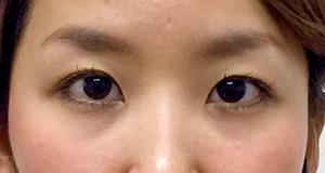 涙袋形成(ヒアルロン酸) 症例写真2 Before