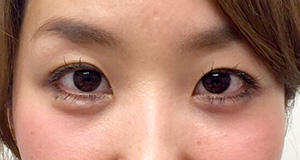 涙袋形成(ヒアルロン酸) 症例写真2 After
