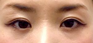 涙袋形成(ヒアルロン酸) 症例写真3 Before
