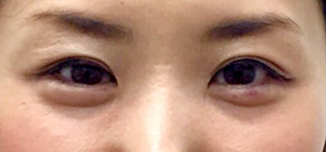 涙袋形成(ヒアルロン酸) 症例写真3 After