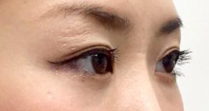 涙袋形成(ヒアルロン酸) 症例写真4 Before