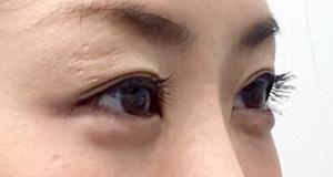 涙袋形成(ヒアルロン酸) 症例写真4 After