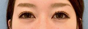 涙袋形成(ヒアルロン酸) 症例写真5 Before
