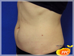 脂肪分解(溶解)注射 症例写真2 側面 Before